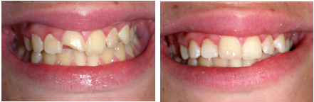 Chipped Tooth 2